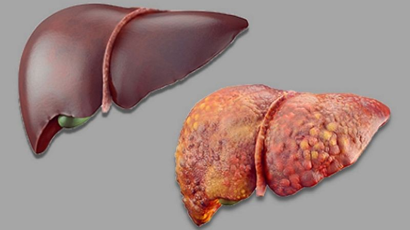 Symptoms of Unhealthy liver